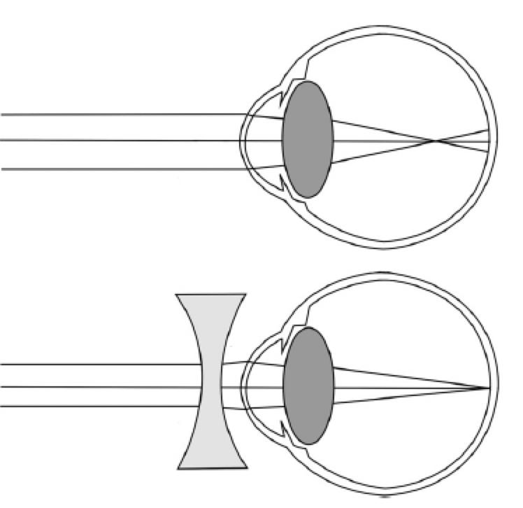 myopia, myopia correction