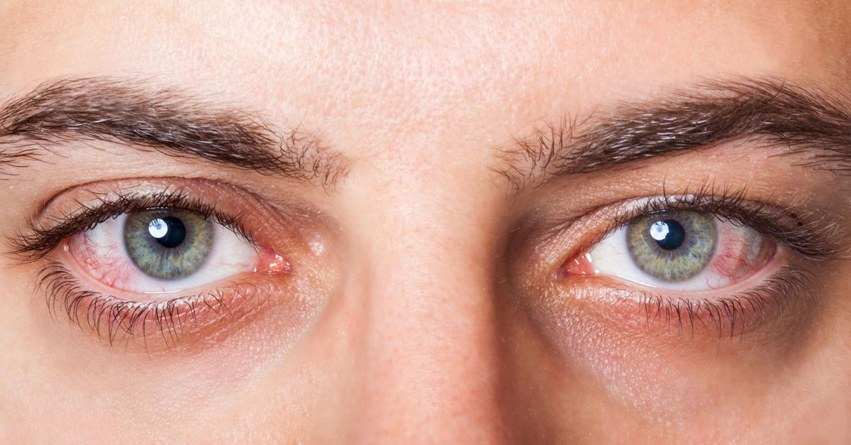 Dry Eye Syndrome  The Signs, Symptoms and Available Treatments